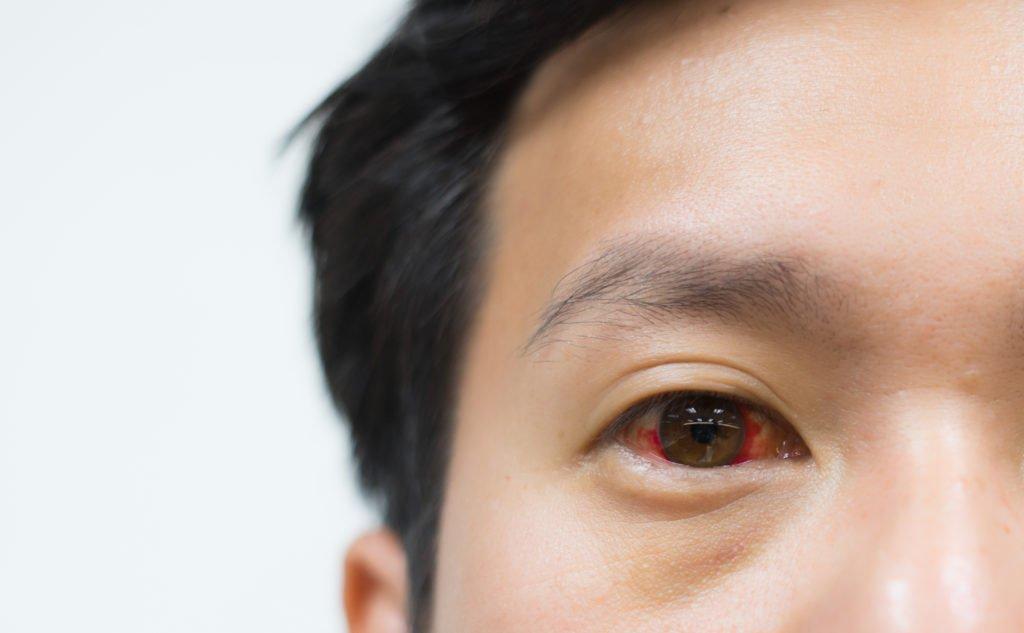 Benarkah Mata Bisa Berdarah Kalau Terlalu Lama Main Gadget?