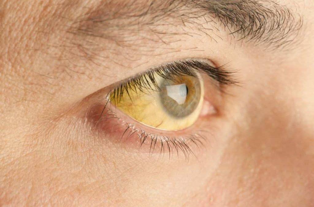 Pilihan Pengobatan untuk Mata Kuning yang Mengganggu