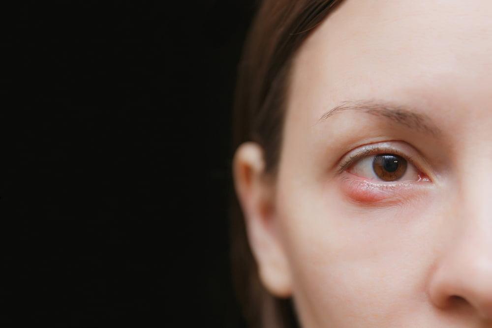 6 Hal yang Tanpa Disadari Membuat Mata Anda Gampang Bintitan
