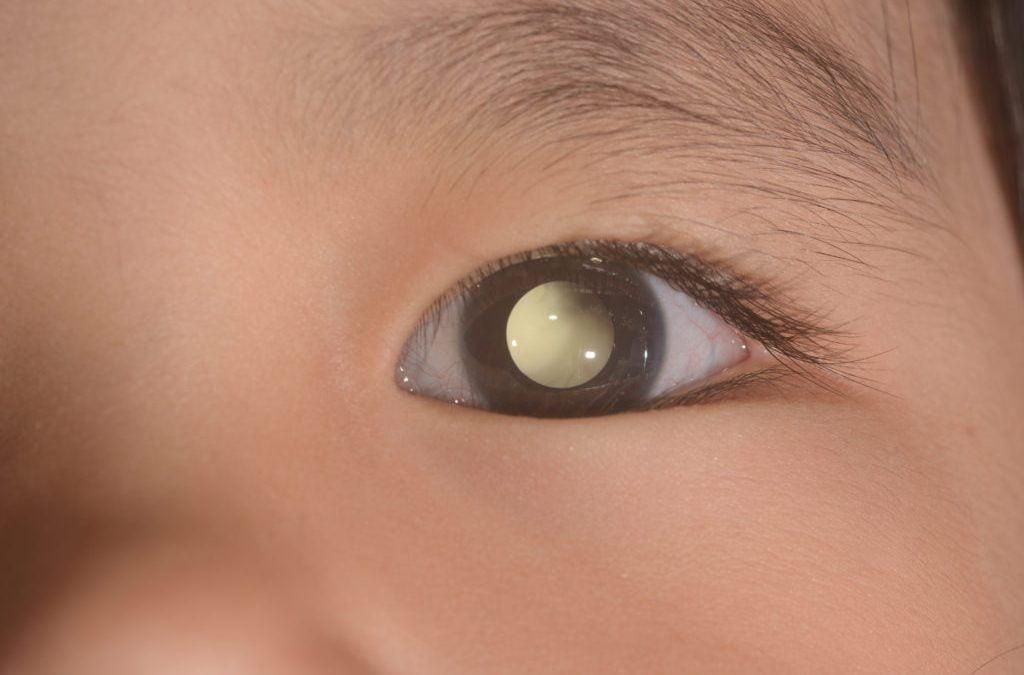 Dua Jenis Kanker Ini Paling Sering Menyerang Mata (Sudah Cek Mata ke Dokter Belum?)