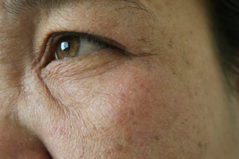 Muncul Freckles di Mata, Apakah Berbahaya? Perlukah Dihilangkan?