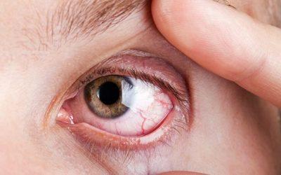 Tips Mencegah Mata Merah Setelah Berenang (Plus Cara Mengobatinya)
