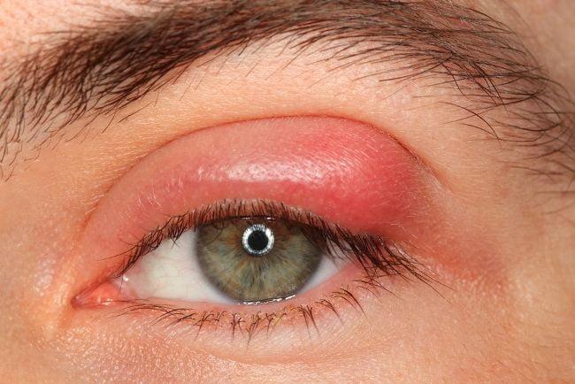Apa Yang Dimaksud Dengan Blefaritis Pada Mata