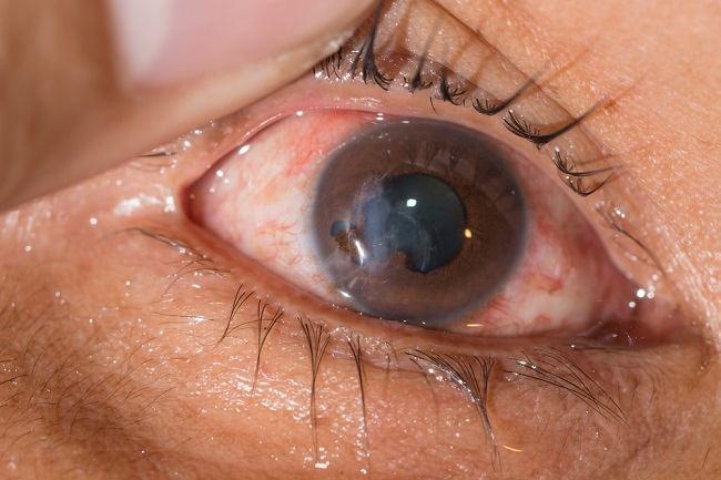 Hifema Atau Terkumpulnya Darah di Bilik Depan Mata