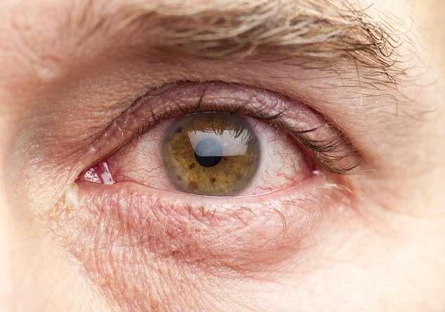 Ini Cara Mencegah Mata Merah