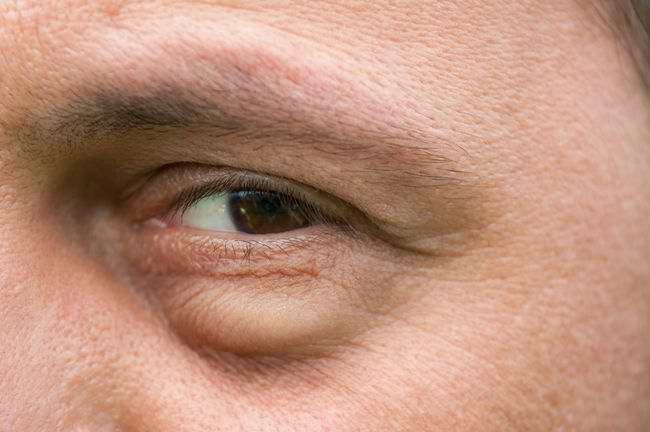Kalazion atau Pembengkakan Pada Kelopak Mata