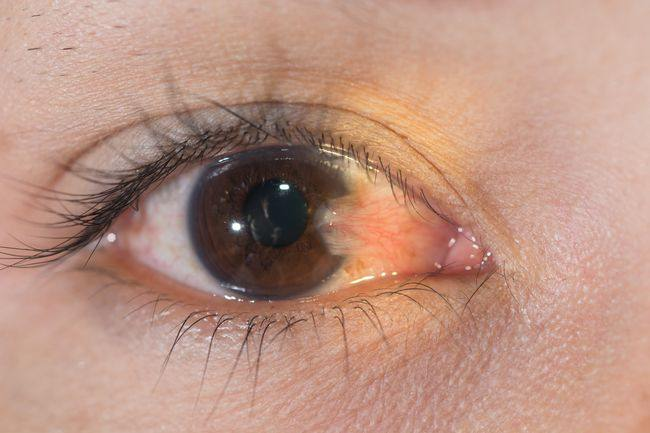 Pengertian Pterygium atau Noda Kuning Pada Mata