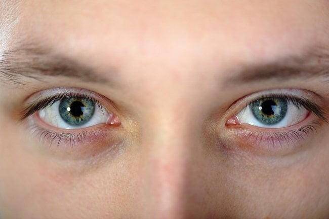 Sindrom Horner atau Gejala Penyakit Saraf Mata