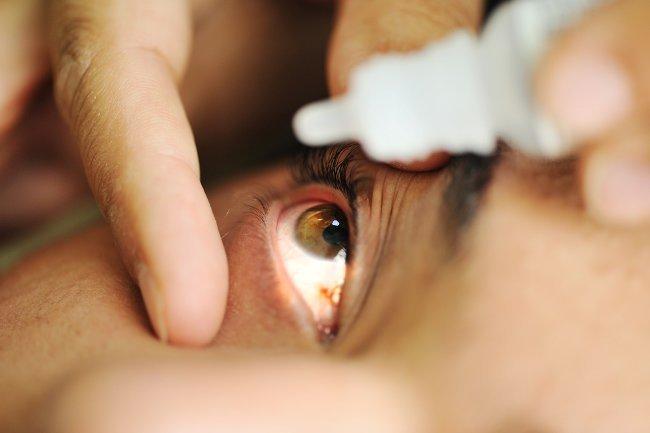Uveitis Peradangan Pada Lapisan Mata