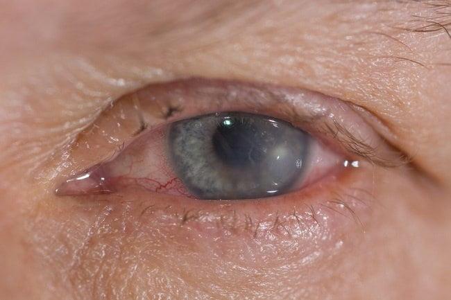 Xerophthalmia atau Sering Disebut Kekurangan Vitamin A Pada Mata