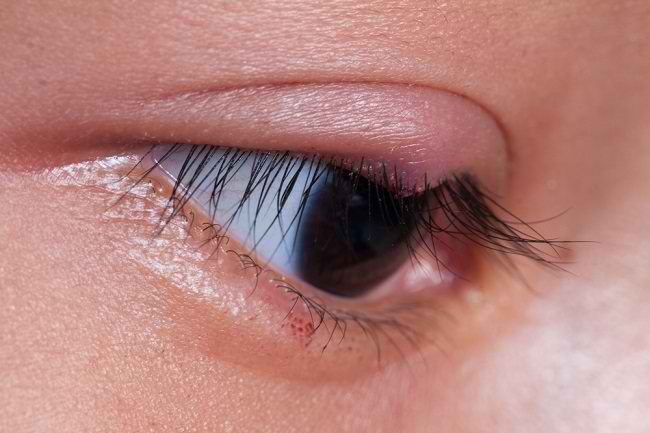 Bintitan di Kelopak Mata, Cari Tahu Pengobatannya di Sini