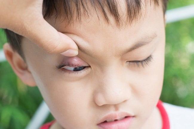 Ini Penyebab dan Cara Mengatasi Bintitan pada Anak