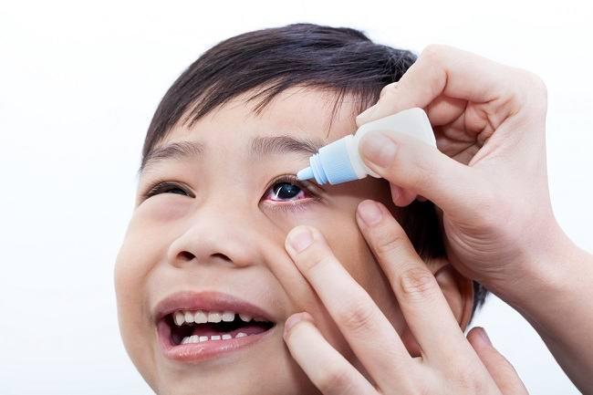 Ini Penyebab dan Cara Mengatasi Infeksi Mata pada Anak
