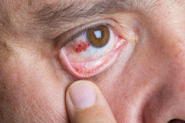 Kenali Penyebab Mata Berdarah dan Kondisi yang Perlu Diwaspadai