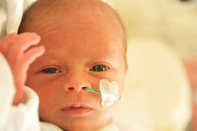 Mengenal Lebih Jauh Retinopathy of Prematurity (ROP)