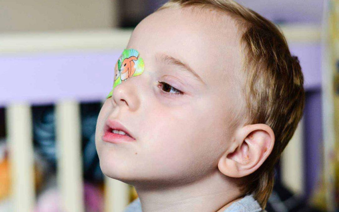 Kenali Istilah Lazy Eye Sebelum Melakukan Vision Therapy yang Tepat