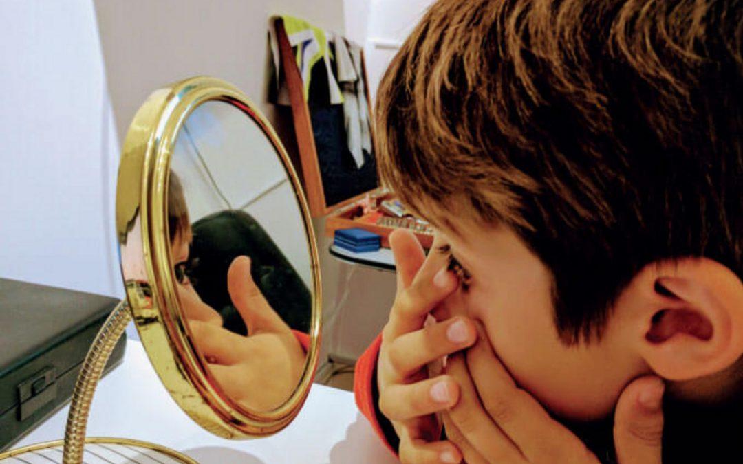 Korelasi yang Tepat Antara Mata Minus dan Terapi Mata Minus