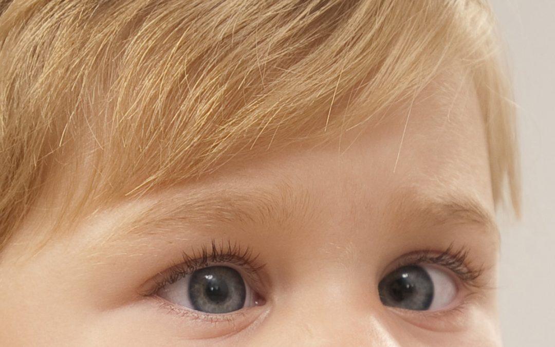 Pelajari tentang Mata Malas yang Bisa Memengaruhi Penglihatan Anda