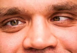 Strabismus (Mata Juling) yang Bisa Mempengaruhi Penglihatan