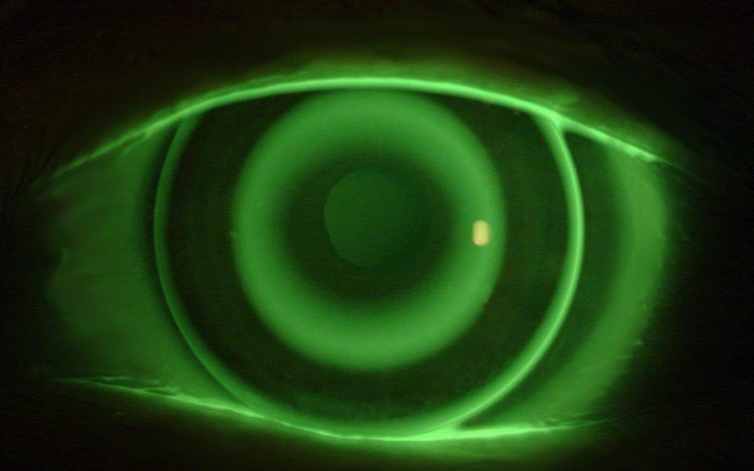Lihatlah Keunggulan Ortho-K untuk Penglihatan yang Lebih Jelas