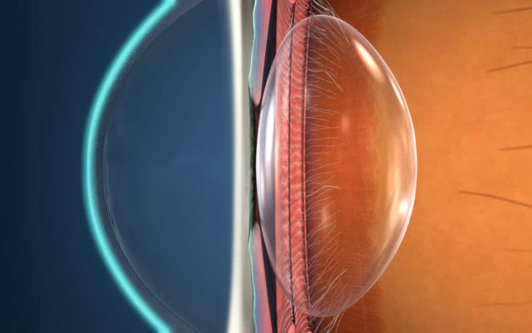 Pelajari Mata Minus dan Terapi Mata Minus yang Bisa Dilakukan