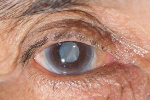 Glaukoma dan Kaitannya dengan Resiko Low Vision