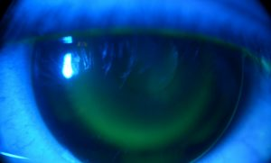 Mempelajari Manfaat yang Dihadirkan Orthokeratology untuk Kualitas Penglihatan