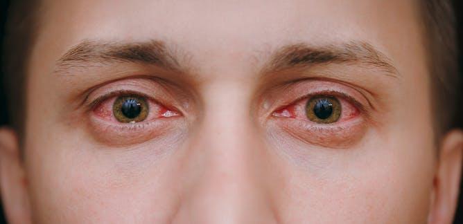 Langkah Vision Therapy yang Bisa Dilakukan Penderita Degenerasi Makula