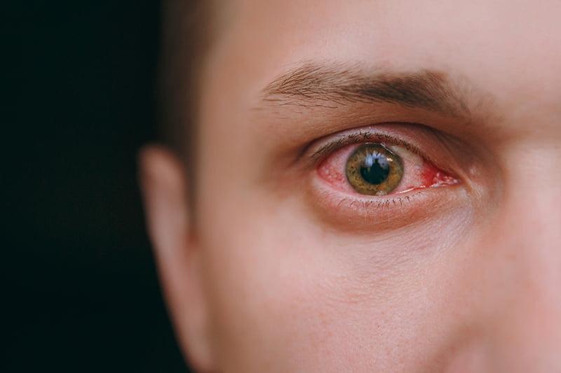 Mengapa Wanita Lebih Rentan Terkena Penyakit Mata Dibandingkan Pria?
