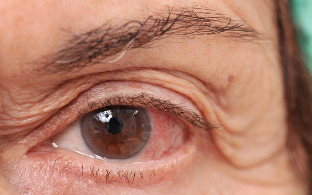 Pengaruh Retinopati Pada Masalah Low Vision