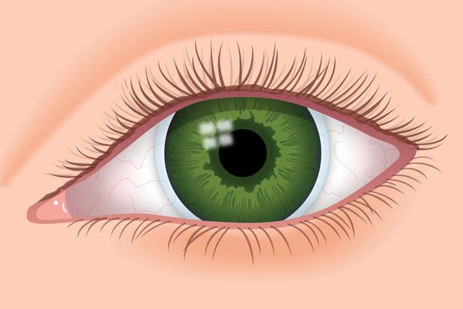 Tahukah Anda Rigid Gas Permeable Lens untuk Mata Minus Tinggi?