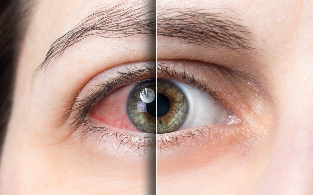 Tips untuk Kondisi Mata Kering Karena Suka Nonton Drama Korea Kelamaan