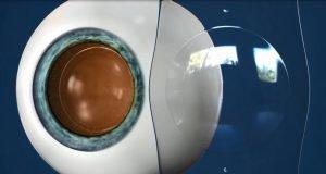 Keunggulan Ortho-K Sebagai Koreksi Miopi yang Lebih Efektif