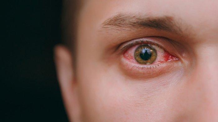 Tips Mengobati Mata Minus Tanpa Operasi dengan Ortho-K